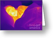Human Being Photo Greeting Cards - Thermogram Of A Sleeping Girl Greeting Card by Ted Kinsman