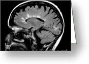 Featured Greeting Cards - Mri Of Multiple Sclerosis Greeting Card by Medical Body Scans