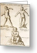Siamese Photo Greeting Cards - 1662 Schott Birth Defects, Teratology Greeting Card by Paul D Stewart