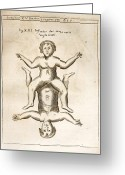 Siamese Photo Greeting Cards - 1662 Schott Conjoined Infants Greeting Card by Paul D Stewart