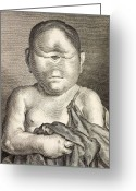 Cyclops Greeting Cards - 1777 Buffon Cyclopia Congenital Disorder. Greeting Card by Paul D Stewart