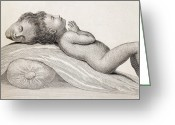 Siamese Photo Greeting Cards - 1787 Two Headed Boy Of Bengal By E. Home Greeting Card by Paul D Stewart