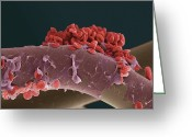 Paper Images Greeting Cards - Blood Clot, Sem Greeting Card by Steve Gschmeissner