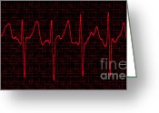Enhanced Greeting Cards - Atrial Fibrillation Greeting Card by Science Source