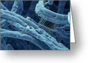 Bacterial Greeting Cards - Anthrax bacteria SEM Greeting Card by Eye Of Science and Photo Researchers