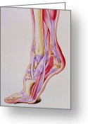 Swollen Greeting Cards - Artwork Of Acute Inflammation Of Achilles Tendon Greeting Card by John Bavosi