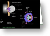 Embryogenesis Greeting Cards - Blastocyst Implantation, Diagram Greeting Card by Francis Leroy, Biocosmos