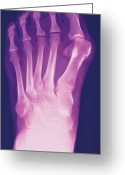 Swollen Greeting Cards - Bunion, X-ray Greeting Card by Miriam Maslo