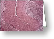 Layer Greeting Cards - Cerebellum Tissue, Light Micrograph Greeting Card by Robert Markus