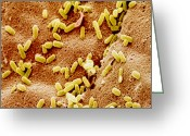Toothbrush Greeting Cards - Col. Sem Of Bacteria On Toothbrush Filament Greeting Card by Power And Syred