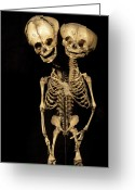 Siamese Photo Greeting Cards - Conjoined Twins Greeting Card by Arno Massee