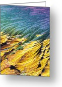 Compound Greeting Cards - Cortisol crystals LM Greeting Card by David Parker and SPL