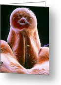 Vulva Greeting Cards - False-colour Sem Of External Genitalia In Embryo Greeting Card by Professors P.m. Motta & S. Makabe