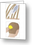 Nit Combing Photo Greeting Cards - Head Lice, Artwork Greeting Card by Peter Gardiner