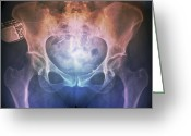 Older Woman Photo Greeting Cards - Incontinence Implant, X-ray Greeting Card by Zephyr