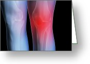 Swollen Greeting Cards - Knee Pain, Conceptual Artwork Greeting Card by David Mack
