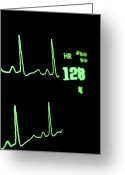 Diagrams Greeting Cards - Medical Monitor Displaying Pulse Greeting Card by Greg Dale