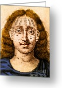 Physiognomy Greeting Cards - Mole Location And Divination Greeting Card by Science Source