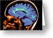 Multiple Sclerosis Greeting Cards - Mri Of Multiple Sclerosis Greeting Card by Medical Body Scans
