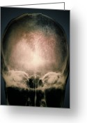 Bmd Greeting Cards - Osteoporosis In The Skull, X-ray Greeting Card by Zephyr