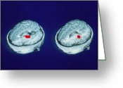 Accurate Greeting Cards - Pet Brain Scans Showing Accurate Memory Of Words Greeting Card by Eric Reiman, University Of Arizona