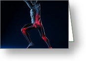 Sprinting Greeting Cards - Running Injuries, Conceptual Artwork Greeting Card by Sciepro