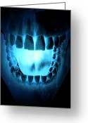 Illustration Technique Digital Art Greeting Cards - Skull, Teeth And Tongue Greeting Card by MedicalRF.com