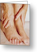 Swollen Greeting Cards - Sore Ankles Greeting Card by Cristina Pedrazzini