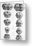 Siamese Photo Greeting Cards - Surgical Anatomy, 1856 Greeting Card by Science Source