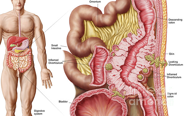 Illustration Of Diverticulosis Print by Stocktrek Images