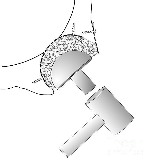 schlage lock parts diagram car parts and wiring diagram images schlage lock parts diagram car parts and wiring diagram images additionally iphone 5