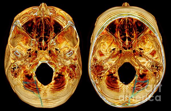 3d Ct Reconstruction Of Skull Fracture Print by Scott Camazine