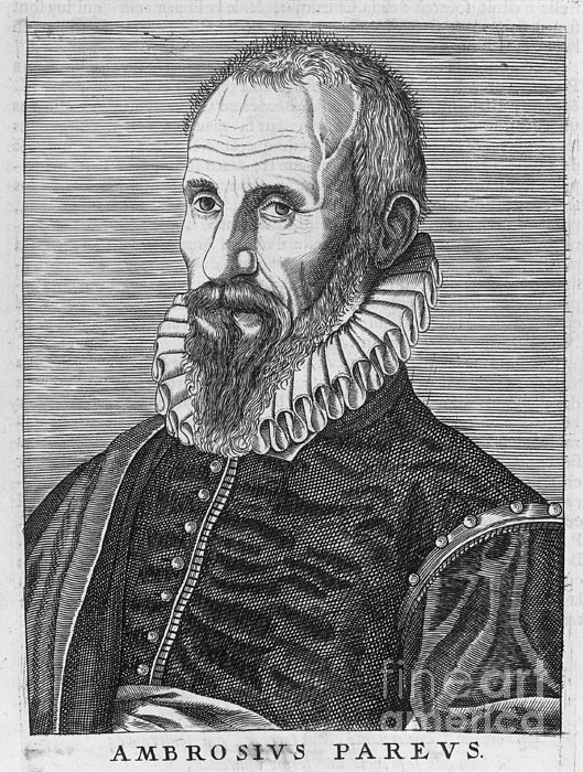 Ambrose Pare (1517?-1590) Print by Granger