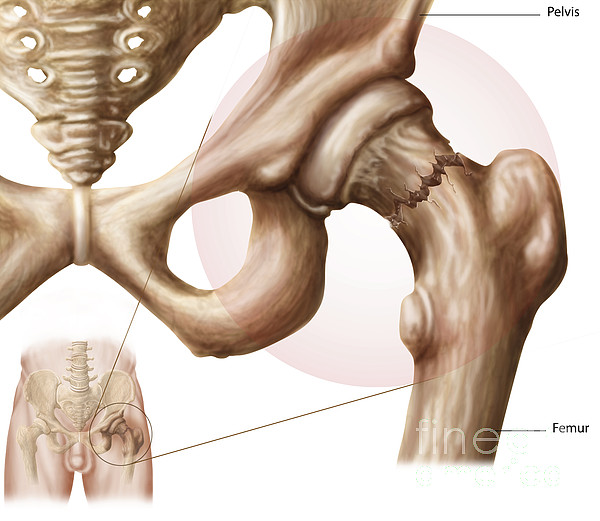Anatomy Of Hip Fracture Print by Stocktrek Images