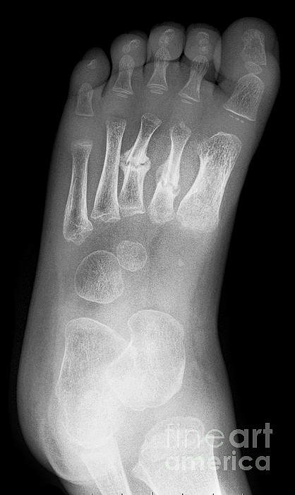 Broken Foot, X-ray by Science Photo Library