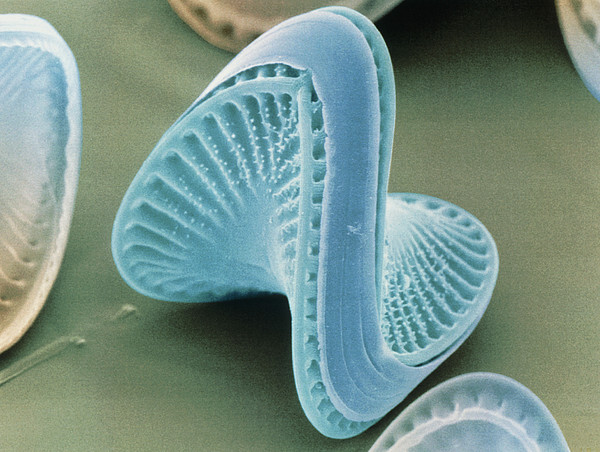 Diatom Algae, Campylodiscus Print by Power And Syred
