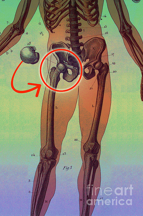 Hip Replacement Print by Dennis D Potokar