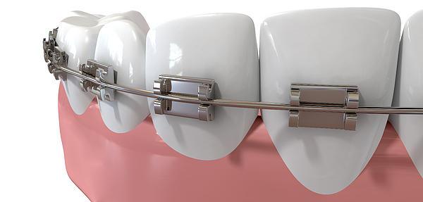 Human Teeth Extreme Closeup With Metal Braces Print by Allan Swart