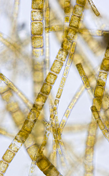 Melosira Filamentous Diatom Alage, Lm Print by Power And Syred