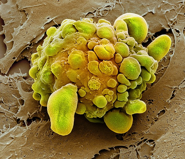 Stem Cell Dying, Sem Print by Science Photo Library
