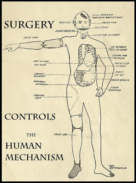 Surgery Controls The Human Mechanism   1906 Print by Daniel Hagerman