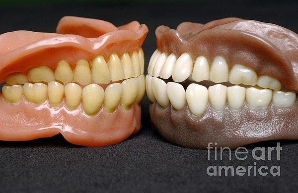 Two Sets Of Dentures Print by Medicimage