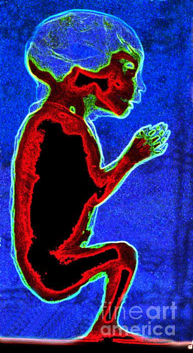 Unborn Fetus Print by Howard Koby