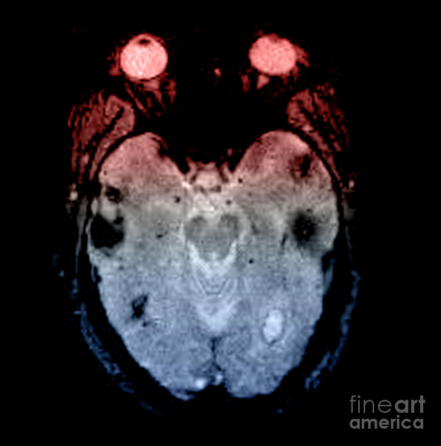 Mri Of Amyloid Angiopathy Photograph  - Mri Of Amyloid Angiopathy Fine Art Print