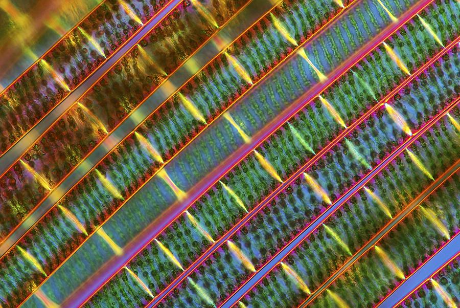 Spirogyra Algae, Light Micrograph Photograph