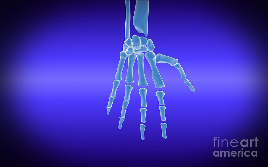 X-ray View Of Human Hand Digital Art  - X-ray View Of Human Hand Fine Art Print
