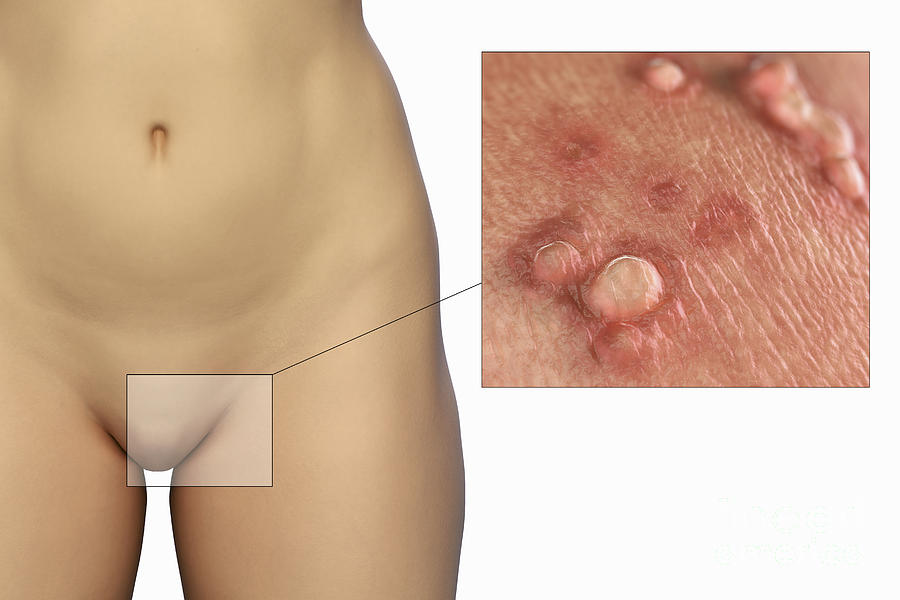 Male Herpes Symptoms: Do you have Male Genital Herpes?