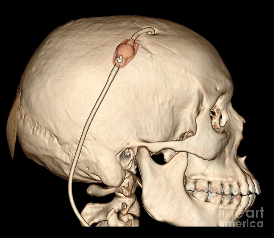 3d Ct Reconstruction Of Intracranial Photograph