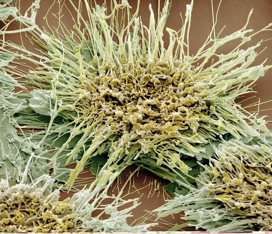Vaginal Cancer Cells, Sem Photograph