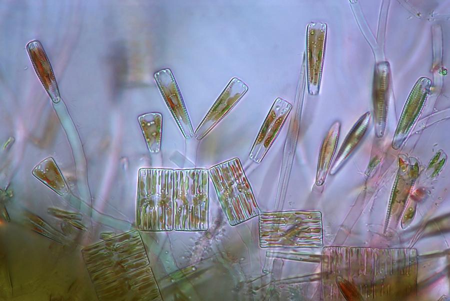 Diatoms, Light Micrograph Photograph
